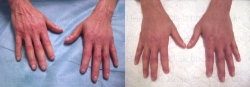 Stem cell skin regeneration on the hands